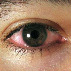 Аллергический конъюнктивит - одно из показаний глазных капель Дипроспан