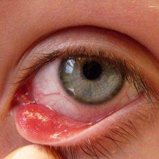 Ячмень - очень распространённое заболевание, трудно найти того, кто хоть раз его не испытывал