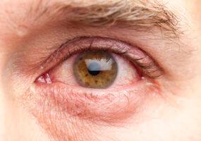 Глазные капли Трегалоза