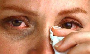 Олопатадин глазные капли