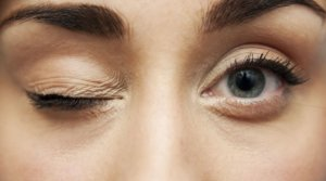 Почему дёргается глаз