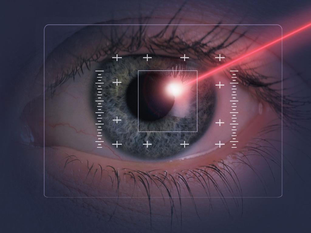 Лечение астигматизма лазером: как проводится и когда рекомендуется