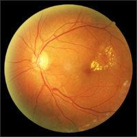 Диабетическая пролиферативная ретинопатия