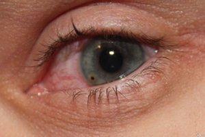Индоколлир глазные