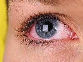 Глазные капли Максидекс: инструкция по применению