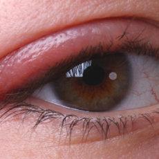 Блефарит занимает четверть от всех глазных заболеваний