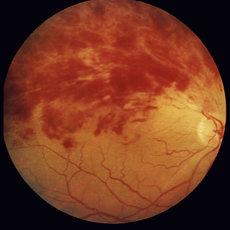 Вид тромбоза центральной сетчатки при офтальмоскопии - определяются множественные кровоизлияния на глазном дней