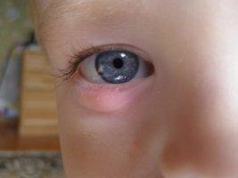 Какие капли и мази гарантируют эффективное лечение ячменя на глазах у детей