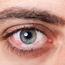 Всё чаще офтальмологи выявляют у людей синдром сухого глаза, что вероятнее всего связано с увеличением времени проводимого за цифровыми устройствами