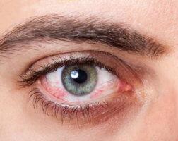 Синдром сухого глаза: причины заболевания