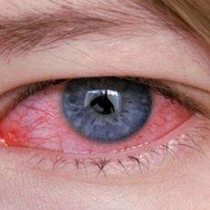 На картинке изображен характерный симптом аллергического конъюнктивита - покраснение слизистой оболочки глаза