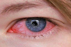 Глазные капли Кетотифен и аналоги нового поколения