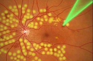 Лазерная коагуляция сетчатки глаза: что это такое