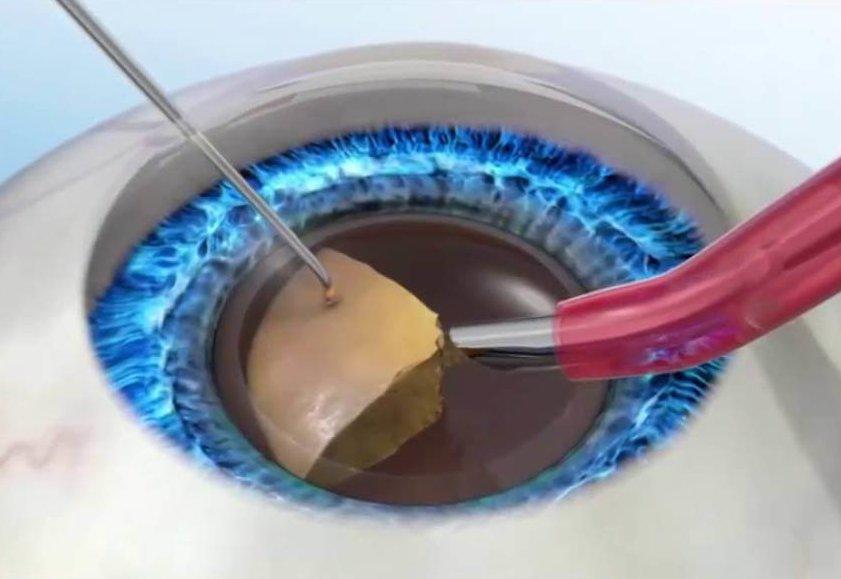 Операция лечения катаракты глаз: возможные осложнения после нее