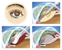 Операция лечения катаракты глаз: возможные осложнения