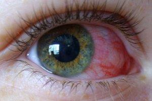 Мазь для глаз Гидрокортизон-ПОС