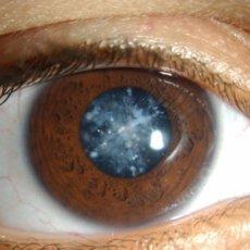 Одно из грозных осложнений для глаз болезни Бехчета - катаракта