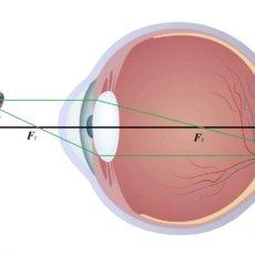 На изображении наглядно отображается, как изображение фокусируется за сетчаткой