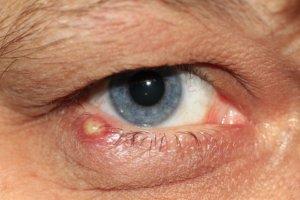 Как лечить чирей под глазом