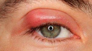 Как лечить чирей под глазом: основные методы терапии