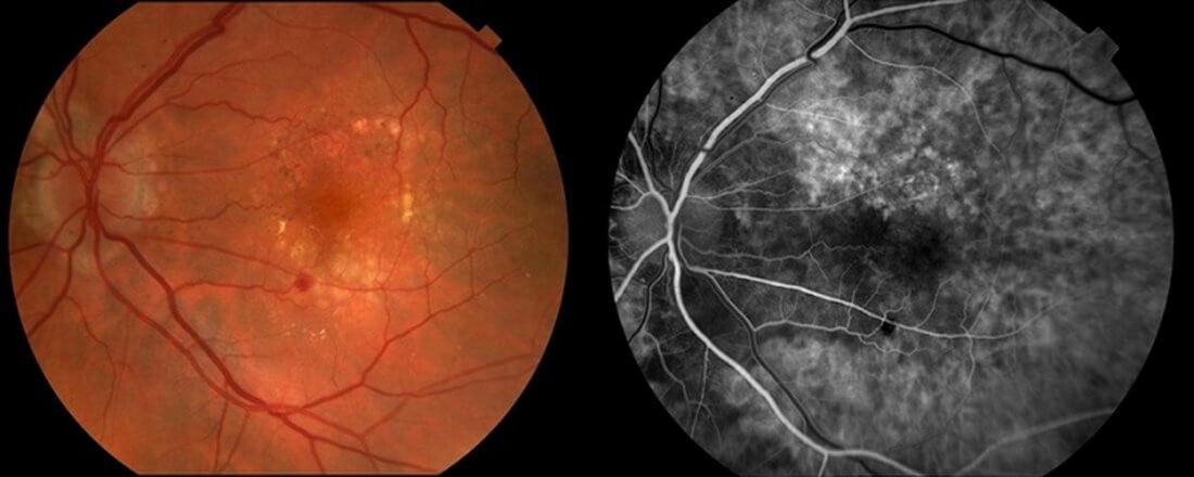 angiopatiya setchatki glaza u rebenka 12 - L'angiopathie rétinienne des deux yeux provoque des symptômes et un traitement