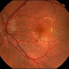 Ангиопатия сетчатки четко диагностируется при помощи офтальмоскопии, результат которой приведен на картинке