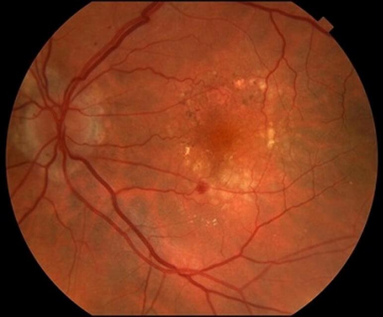 Ангиопатия: поражение сетчатки обоих глаз, как лечить