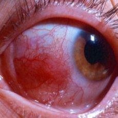 На картинке представлена диффузная форма склерита