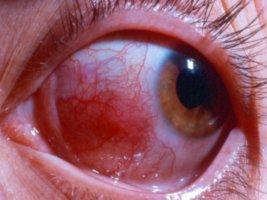 Склерит глаза: что это, причины, последствия, лечение