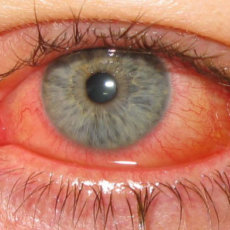 На изображении можно увидеть глаз пациента пораженного кератоконъюнктивитом