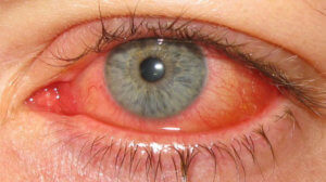 Эпидемический кератоконъюнктивит