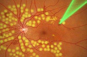 Ангиопатия сетчатки обоих глаз