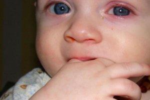 Красные глаза у новорожденного: как можно помочь малышу