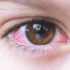 Основное проявления конъюнктивита любого вида – гиперемия слизистой оболочки глаза разной степени выраженности