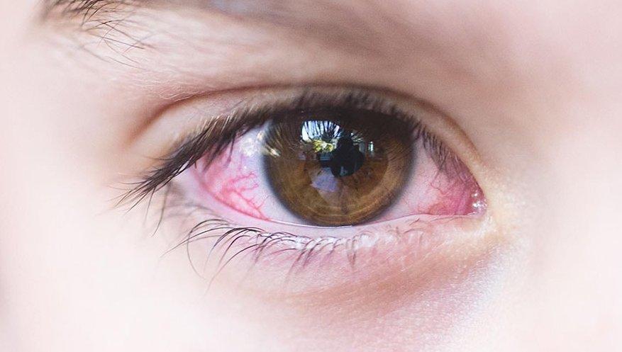 Чем лечить разные виды вирусного конъюнктивита у ребенка