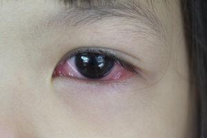 Глазные капли Кром-Аллерг