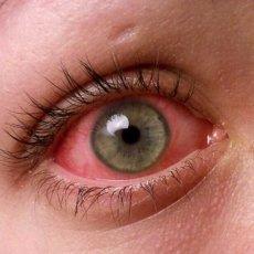 На картинке отображено типичное проявление конъюнктивита – покраснение слизистой глаза