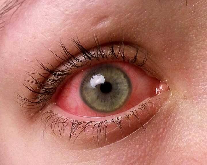 Конъюнктивит у детей: причины, симптомы и методы лечения