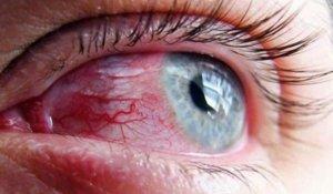Глазные капли Акьюлар: инструкция по применению