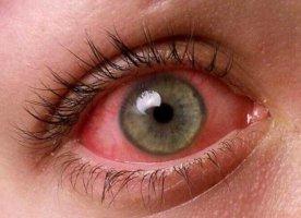 Чем заменить капли для глаз Вита-Йодурол: аналоги