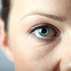 Отеки под глазами могут быть одним из проявлений общесоматической патологии, поэтому нужно обратиться к врачу и пройти базовое обследование