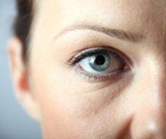 Причины отека под глазом с одной стороны: норма и патология