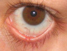 Мазь Тетрациклин для глаз