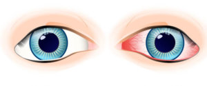Неттависк: антибактериальная глазная мазь