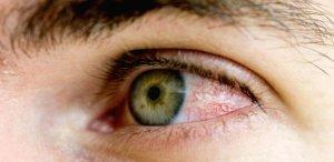 Болят глазные яблоки: почему
