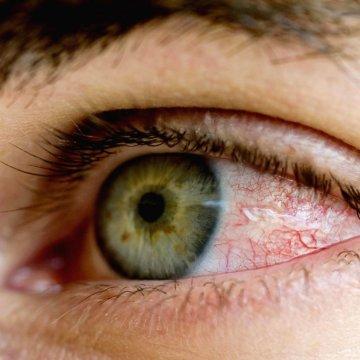 Существует множество причин, по которым могут болеть глаза, не все они безопасны, поэтому нужно внимательно прислушиваться к своему состоянию