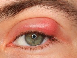 Психосоматика ячменя на глазу