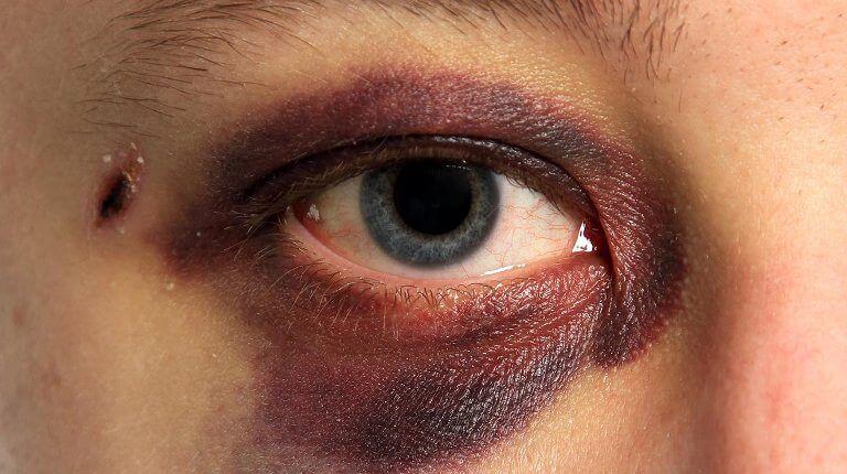 Как убрать синяк под глазом от удара: полезные советы