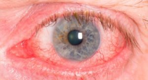 Капли в глаза Сигницеф