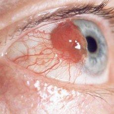 Новообразование на глазу может быть врожденным, но за ним так же нужно следить